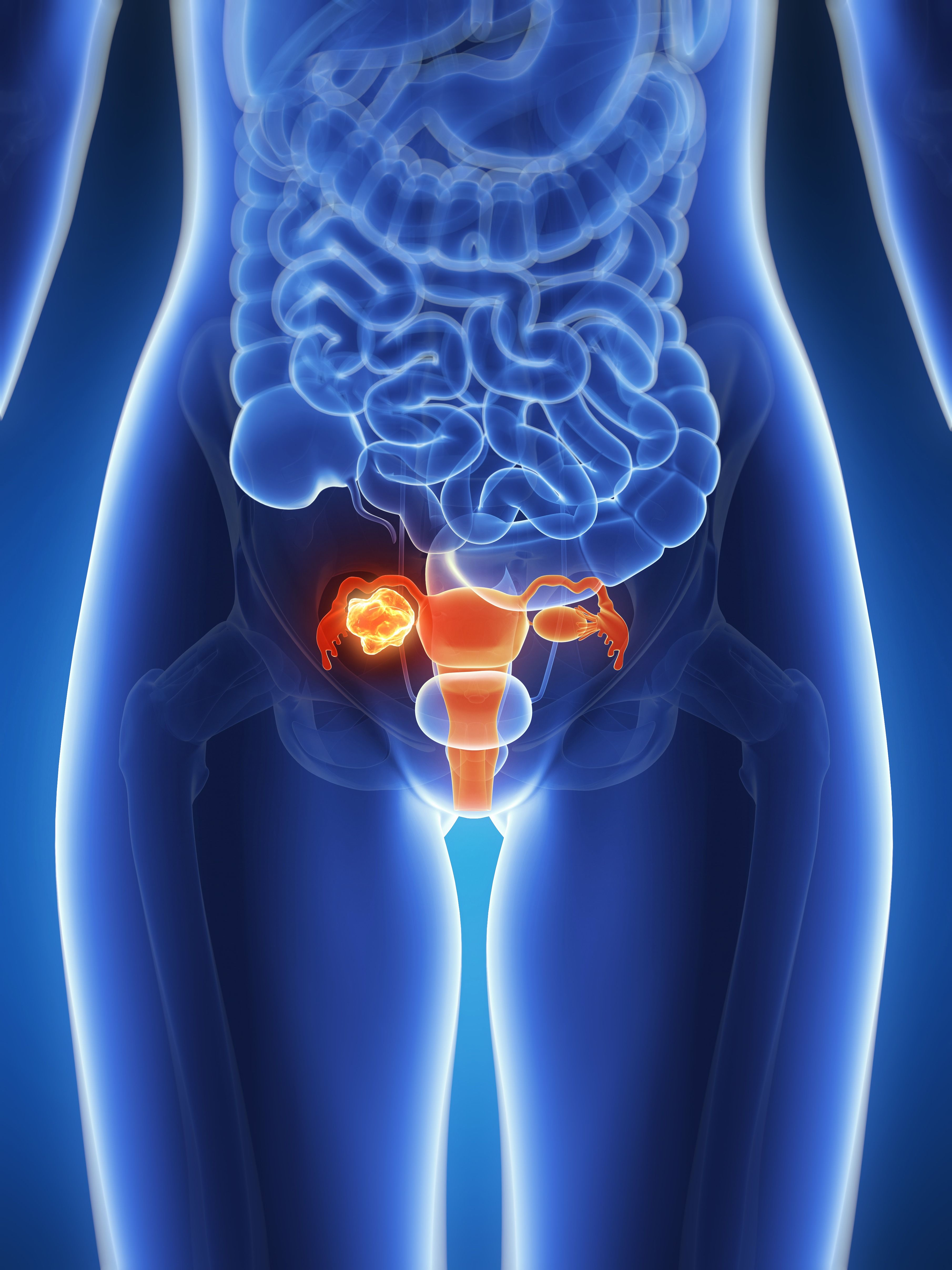 Here's Why Ovarian Cancer Is So Hard to Diagnose, According to a Doctor
