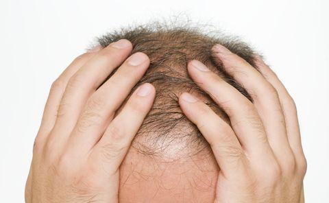 se usa finasterida para el cáncer de próstata