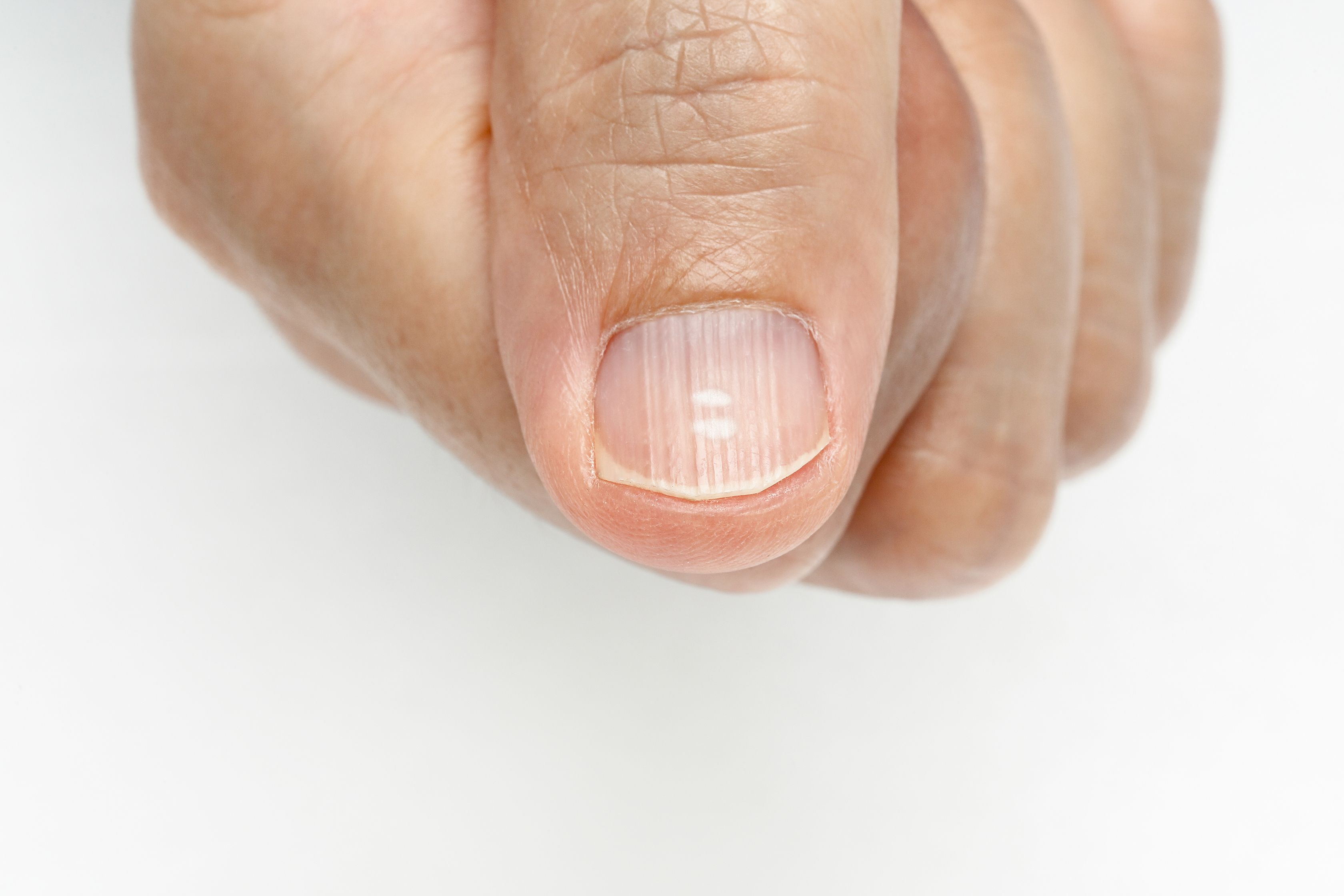 7 Ways To Reduce Fingernail Ridges