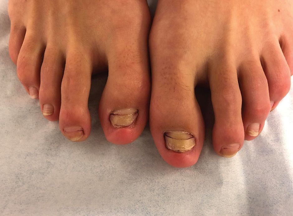 Woman\'s Fish Pedicure Causes Her To Lose Most Of Her Toenails