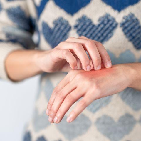 flea bite symptoms, treatment and prevention
