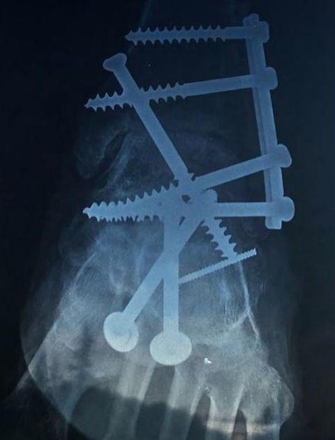 Organism, X-ray,