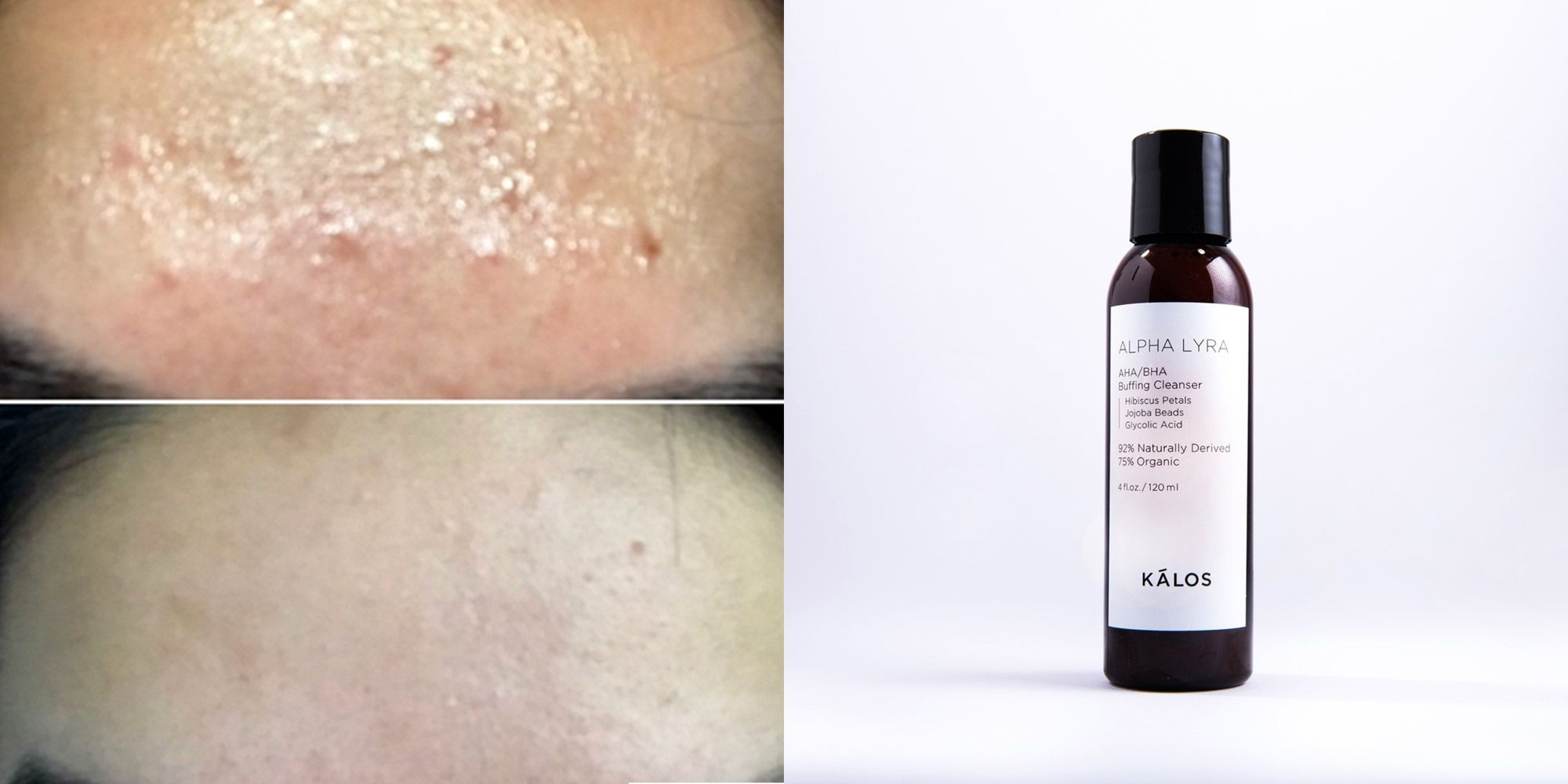 This woman got rid of her forehead acne in *5 days* and we're freaking out