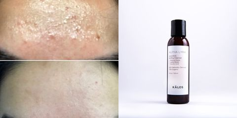 Skin, Product, Face, Beauty, Hand, Skin care, Material property, Lotion, Fluid, Liquid,