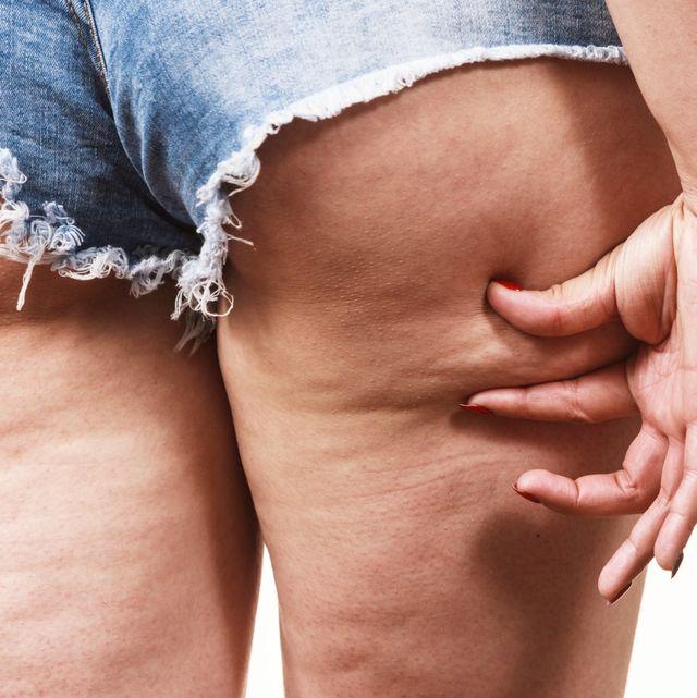 消除大腿橘皮方法
