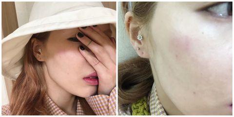 Face, Hair, Skin, Ear, Nose, Cheek, Lip, Chin, Head, Eyebrow,