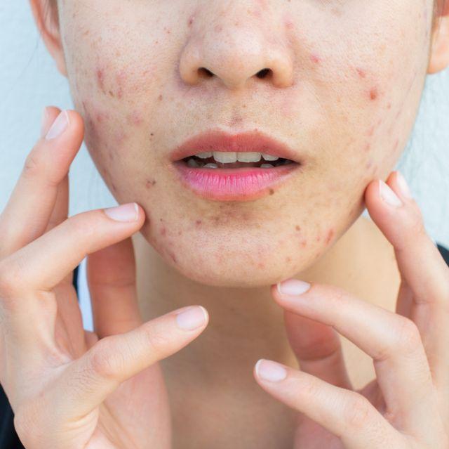 長時間戴口罩而造成痘痘狂冒!專業皮膚科醫生10招預防痘痘長不停