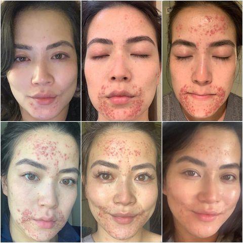 Face, Eyebrow, Forehead, Nose, Skin, Cheek, Chin, Facial expression, Head, Lip,