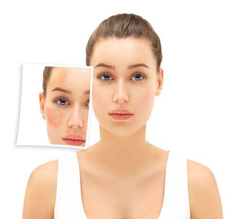 Freckles,dark spots,hyperpigmentation(melasma or chloasma)