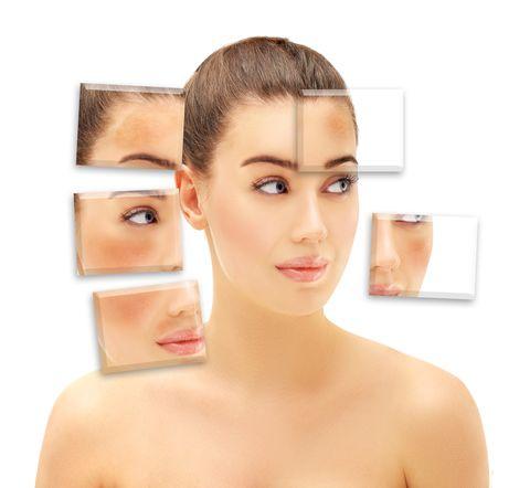 rostro de mujer con diferentes manchas provocadas por el sol y otras causas
