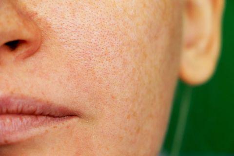 freckles, pigmentation, enlarged pores girl with problem skin