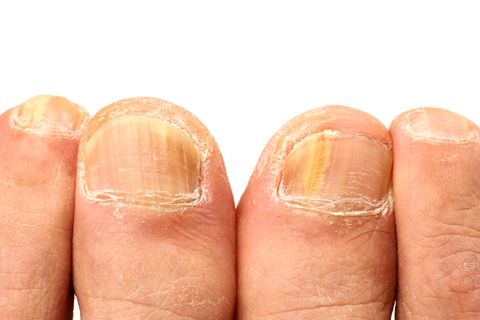 8 Reasons Why Your Nails Are Yellow, According to Dermatologists