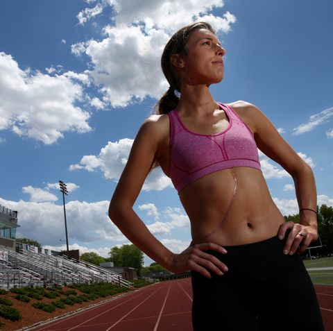 Four-Time Cancer Patient Is In The Race Of Her Life