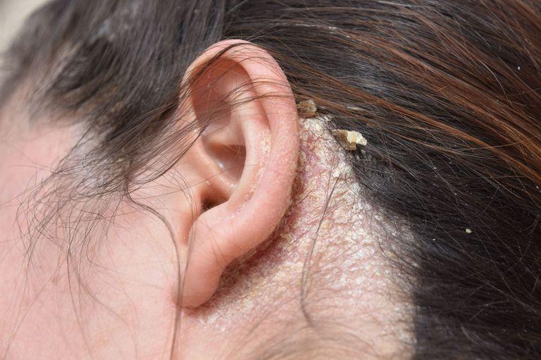 dry head scalp
