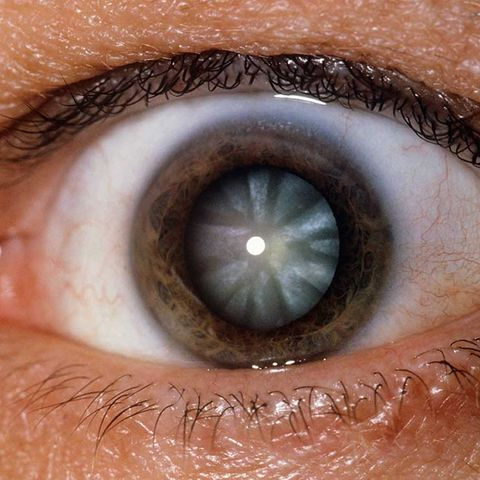 dark eyes more likely to have cataracts