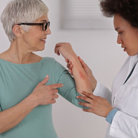 moderate eczemaconsultation with Dr.