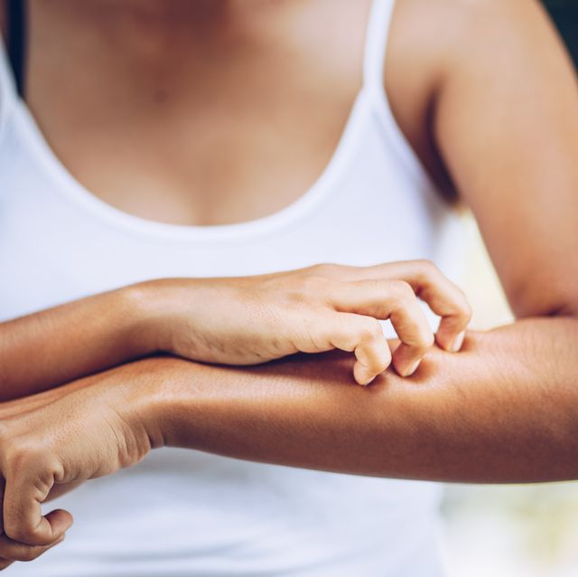 midsection of woman scratching forearm