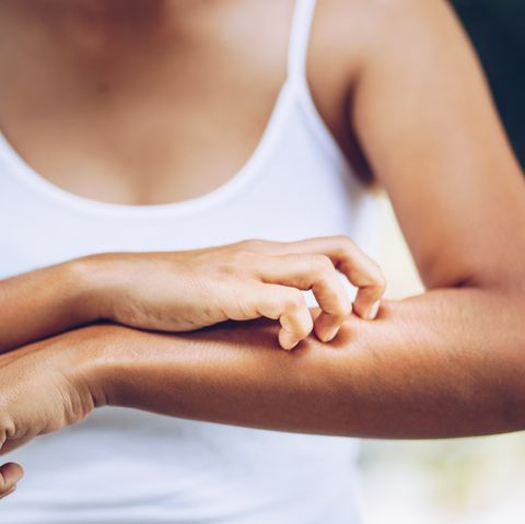 Contact dermatitis is inflammation that results from contact of an external substance with the skin.
