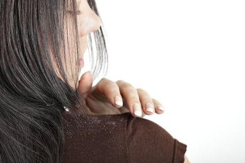 woman brushing dandruff on her shoulder
