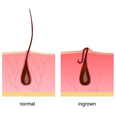 Kenali Masalah Rambut Tumbuh Ke Dalam, Penyebab Dan Cara Mengatasinya