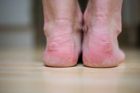 blistered feet