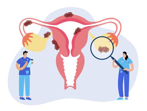 uterus anatomy, endometriosis cancer and tumor disease woman health medicine doctor gynecologist appointment, consultation, help, treatment female reproductive system flat vector illustration