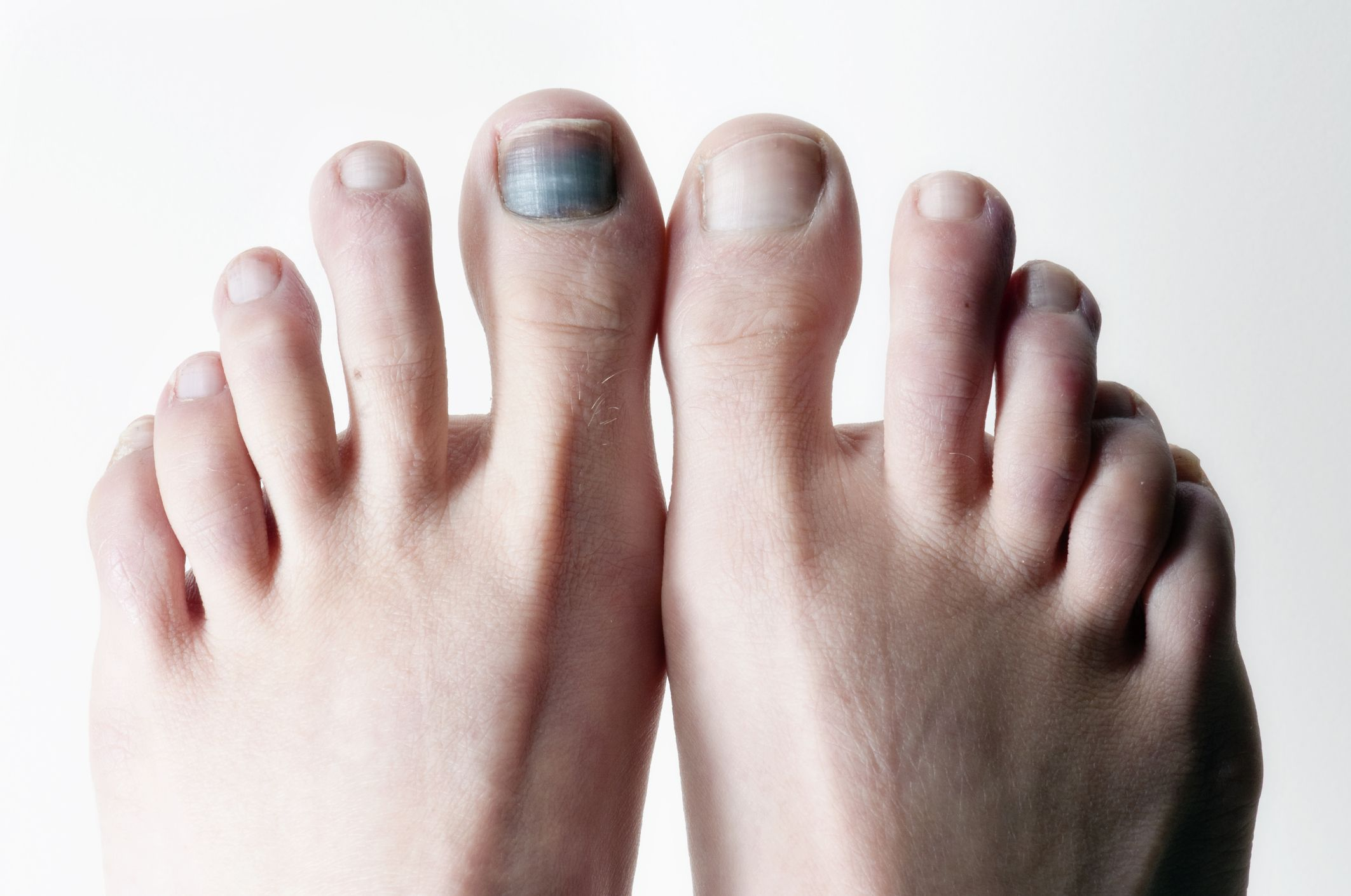 Black Toenails Running Subungual Hematoma And Bruised Toenails
