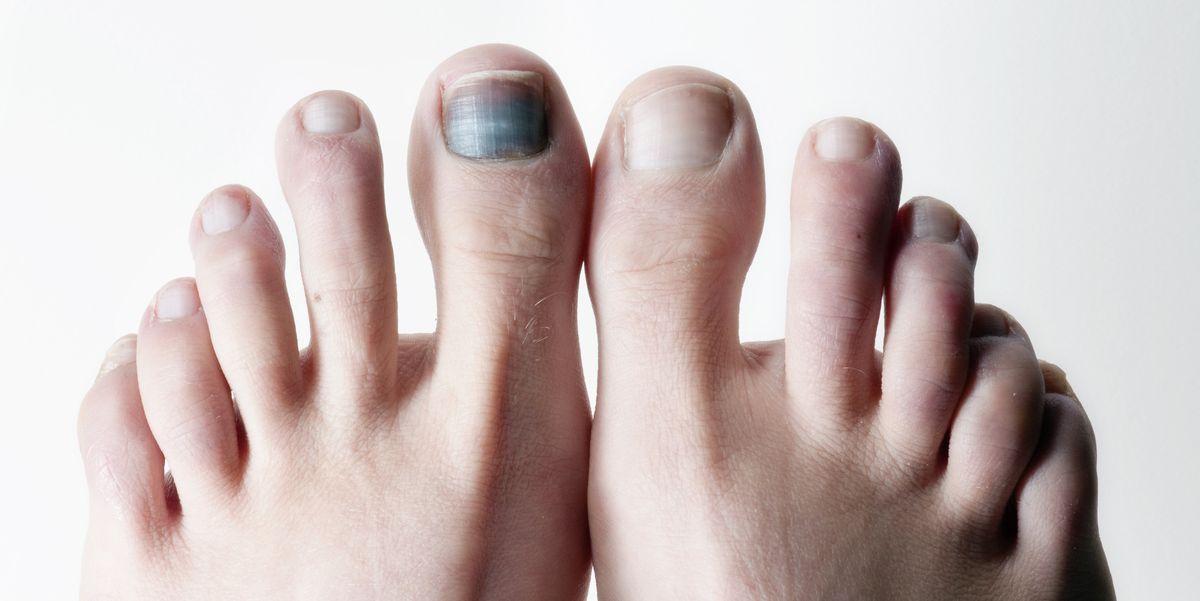 Black Toenails Running Subungual Hematoma And Bruised Toenails
