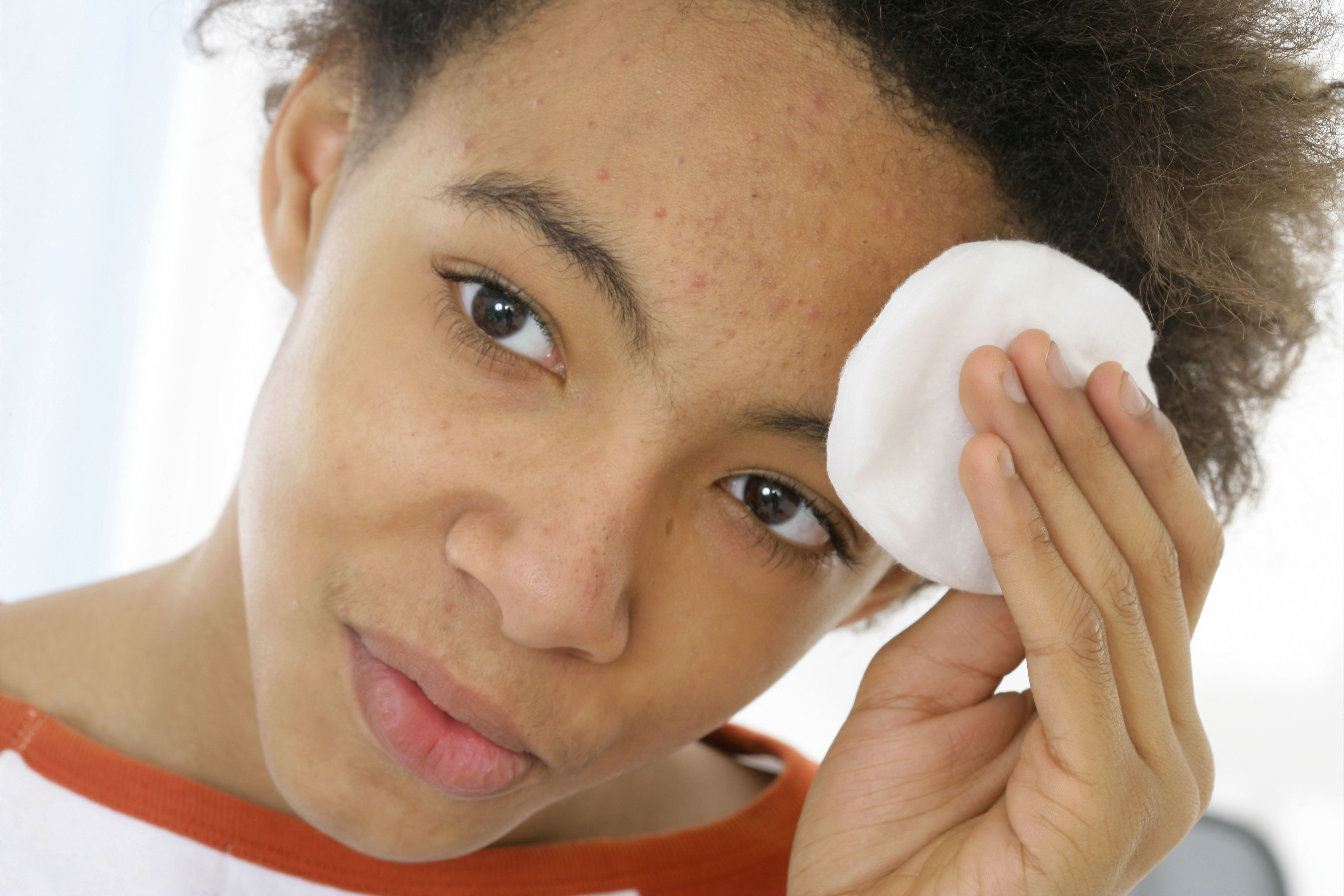 what acne treatments actually work