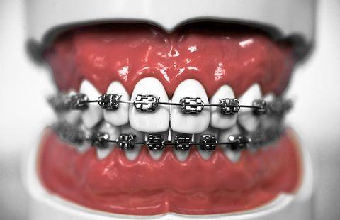extensive dental work