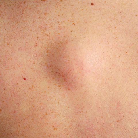 skin irritation bumps