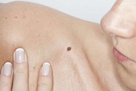 The Panicker S Guide To Moles And Skin Cancer How To Tell