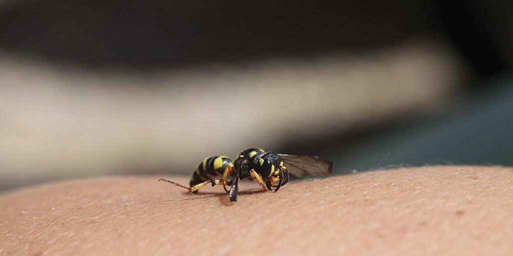 The best ways to treat a wasp sting and why you should never use ...