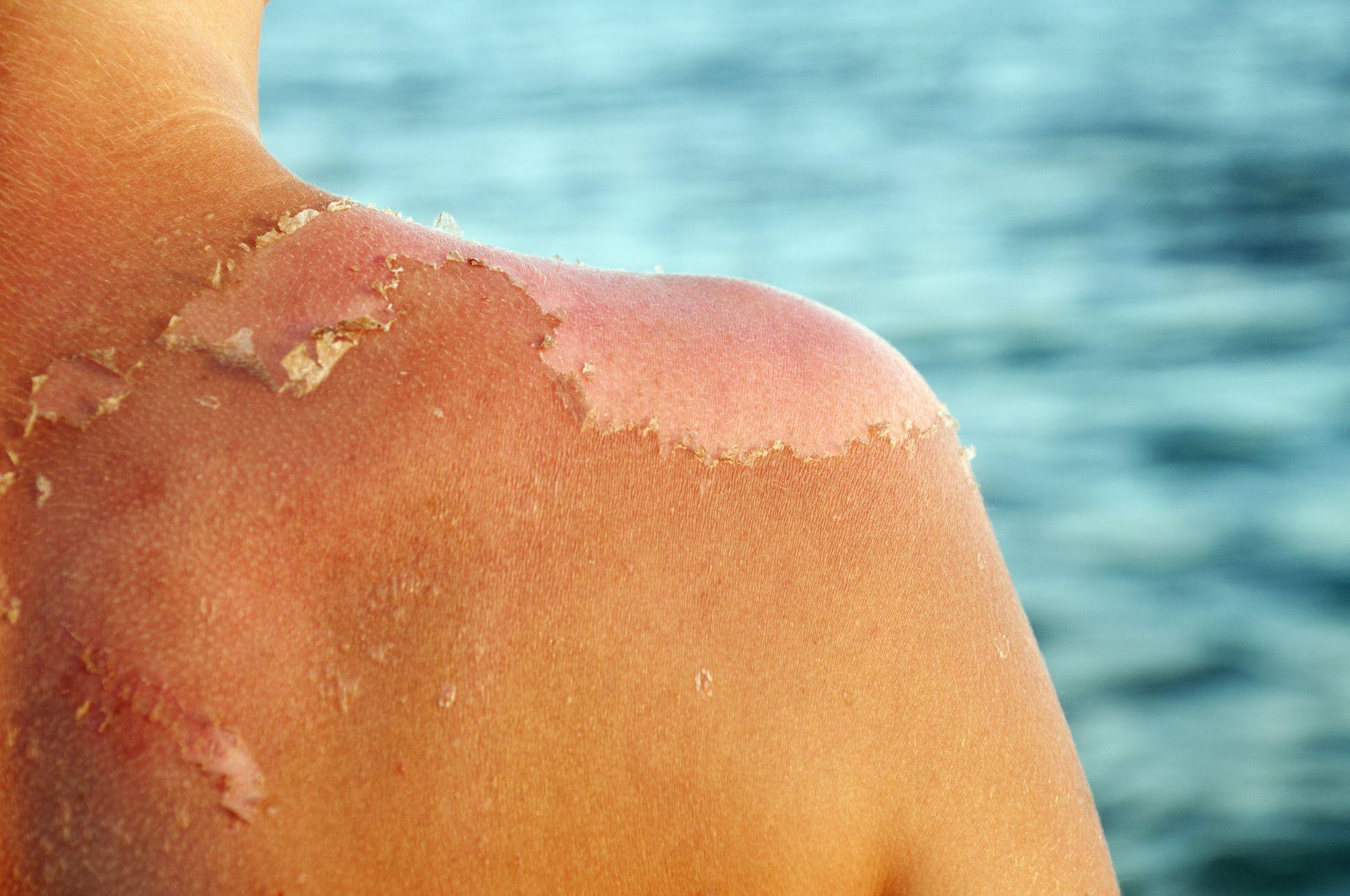 how to treat peeling skin