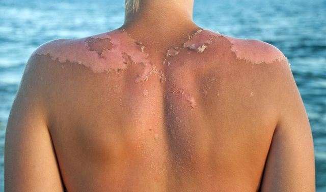 Why It's So Damn Satisfying to Peel Your Sunburn