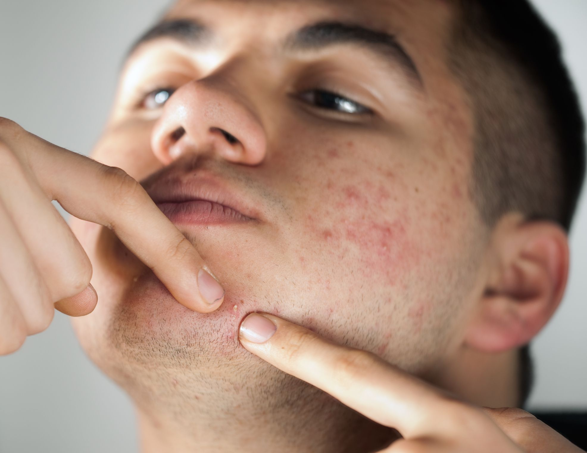 ketogenic diet effects on skin
