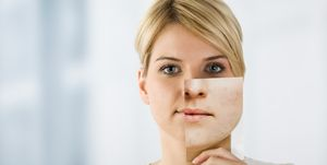 Woman holding image with problematic skin