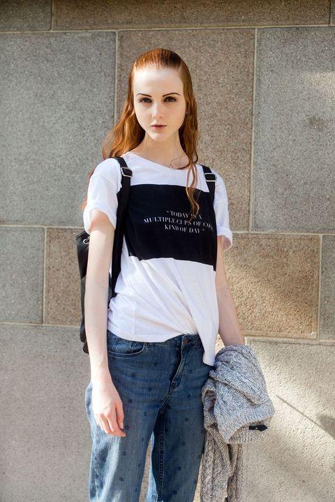 Madison Stubbington anorexia