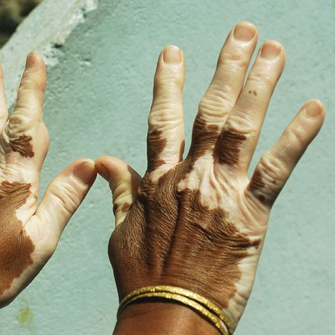 Vitiligo is less common among blue-eyed people.