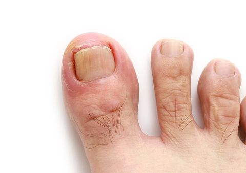 Winai Tepsuttinun Getty Images The Excruciating Pain Of An Ingrown Toenail
