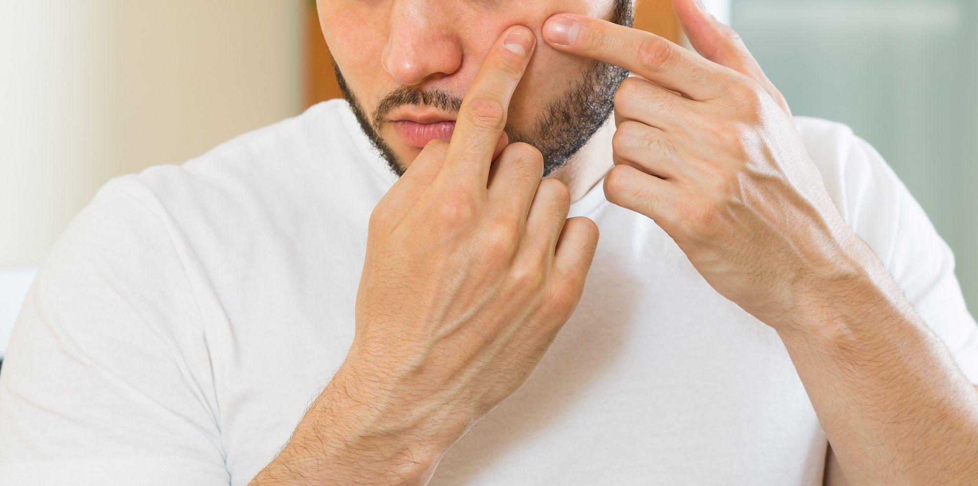 This Neck Pimple Packs a Big Pop