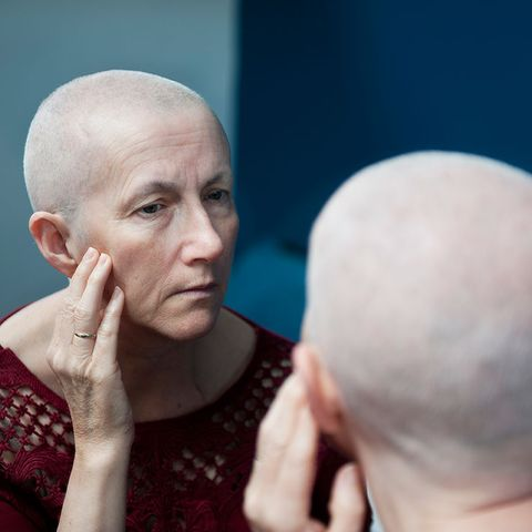 Hair loss and chemo