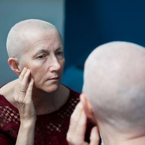 Hair loss and chemo