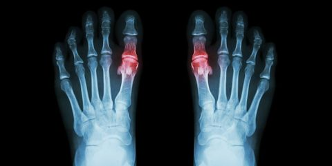 X-ray, Radiography, Medical imaging, Finger, Medical radiography, Joint, Hand, Medical, Radiology,