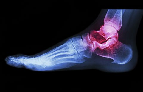 What Aging Does To Your Feet   Prevention
