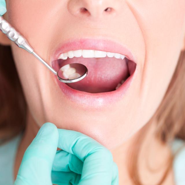 woman having teeth examined by dentist