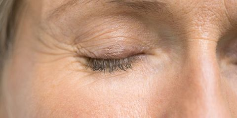 Why you're getting wrinkles