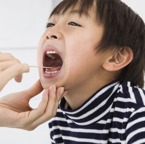 boy with oral thrush