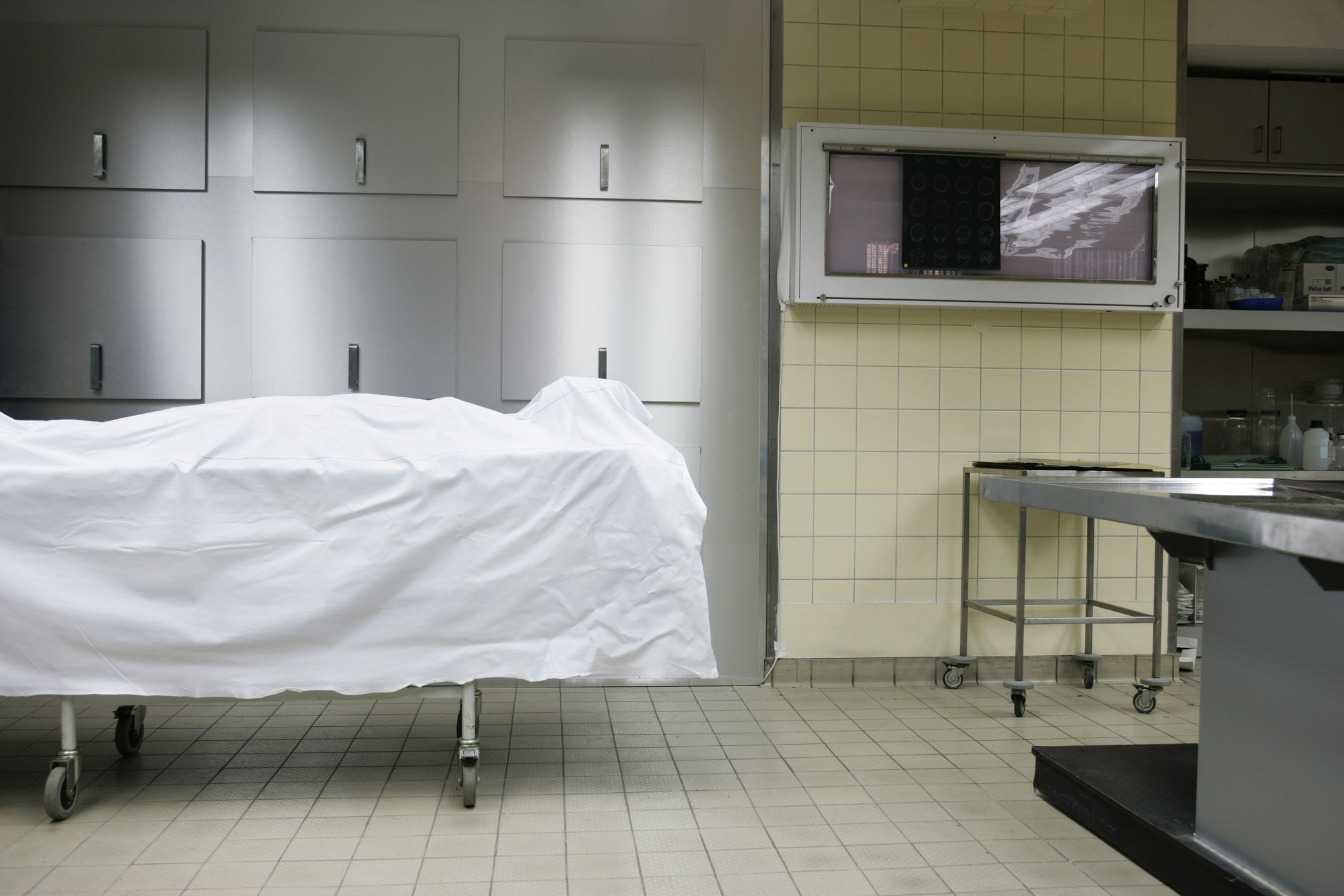 A 'dead' man shocked doctors after waking up during his autopsy