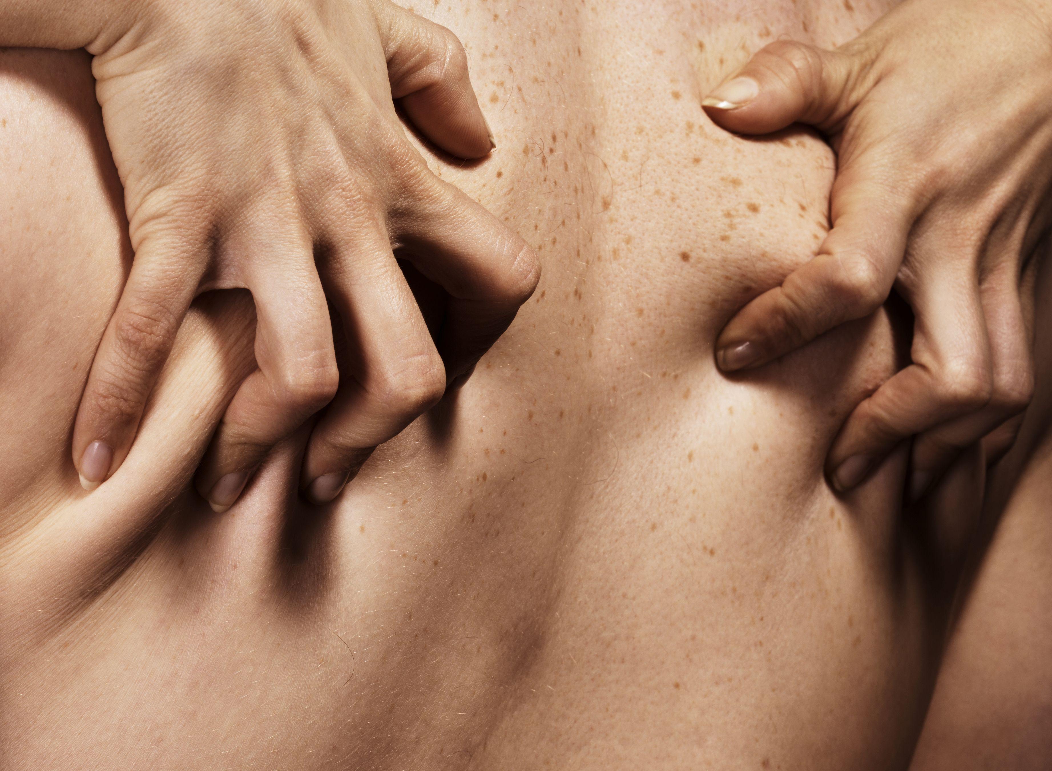 Skin vulva tear irritated skin
